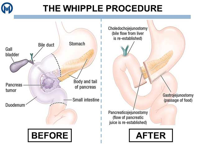 whipple-procedure